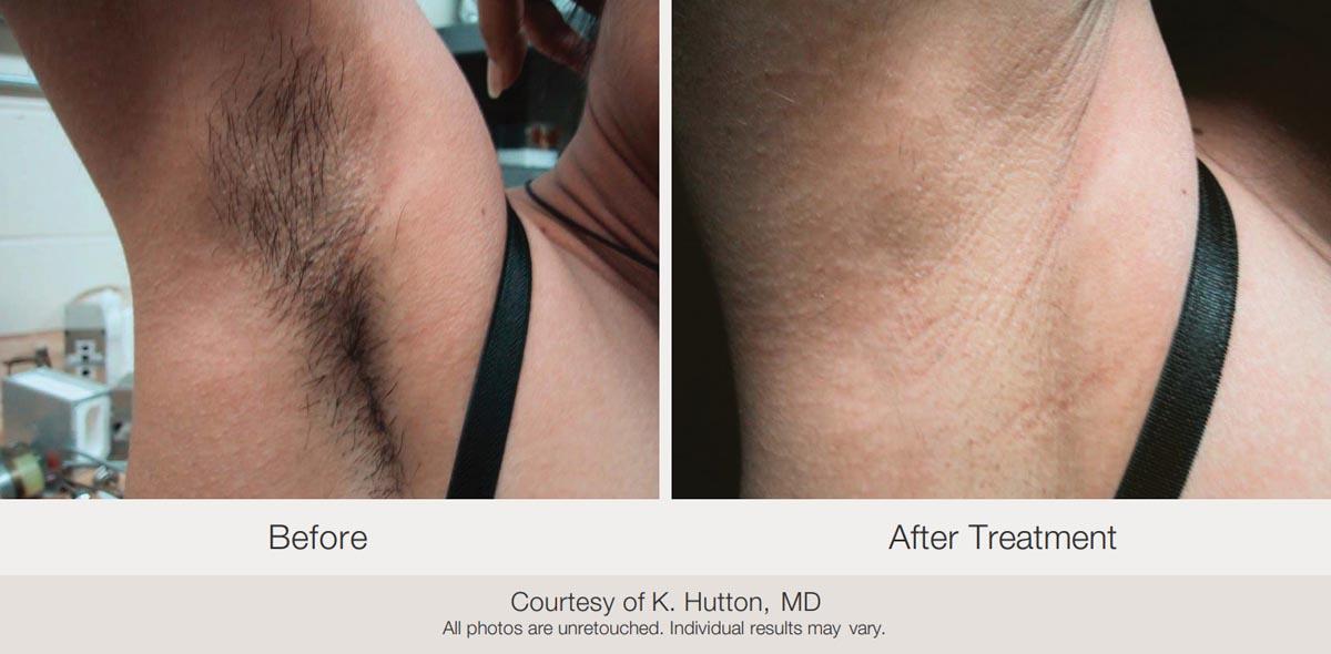 Laser Hair Removal Elite Women S Healthcare